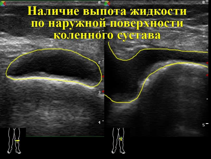 УЗИ коленного сустава снимок