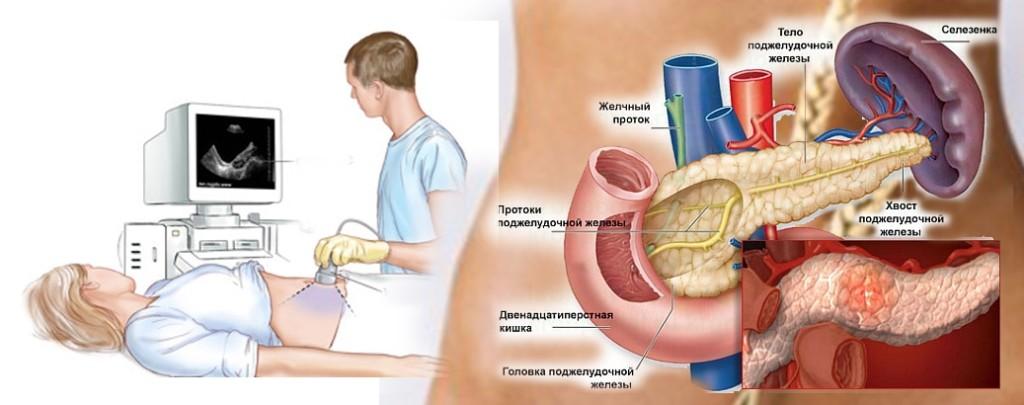 какие органы исследует УЗИ брюшной полости
