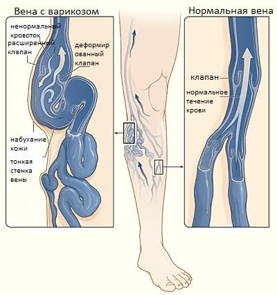 УЗИ как метод диагностики варикоза