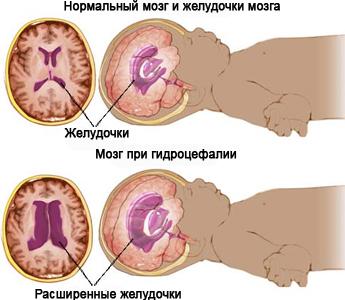 УЗИ головы новорожденного расшифровка