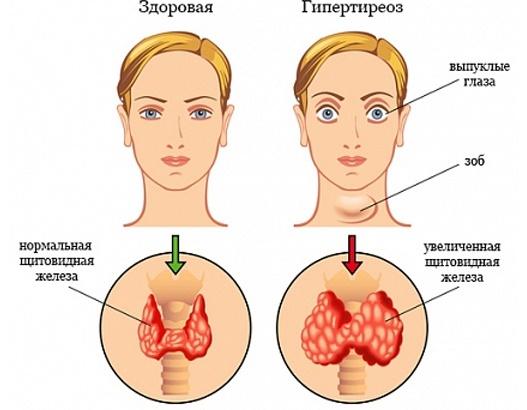 Щитовидная железа показания для УЗИ