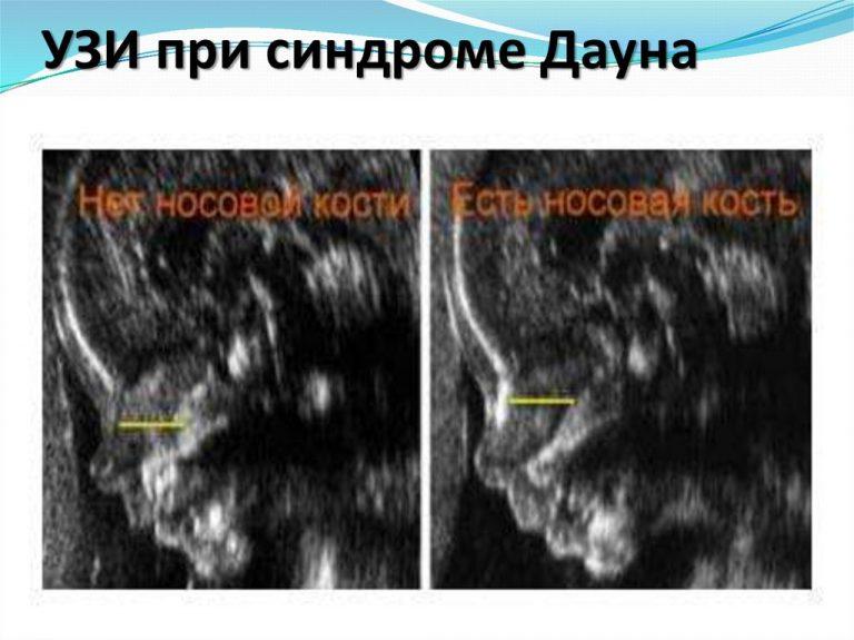 синдром дауна на узи при беременности фото