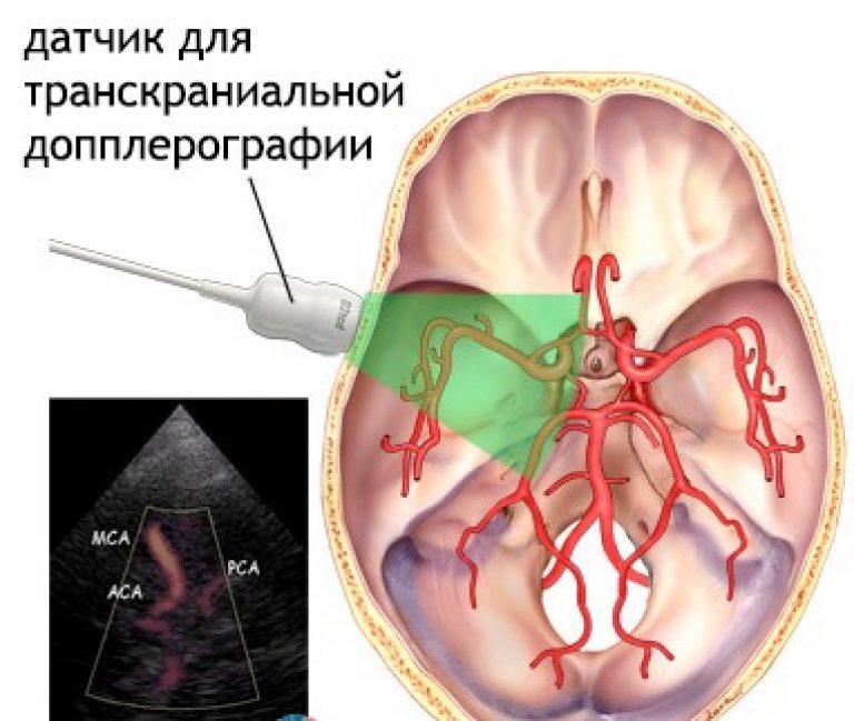 Доплер узи головного мозга
