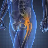 Покажет ли узи тазобедренного сустава коксартроз болят коленные суставы во время беременности