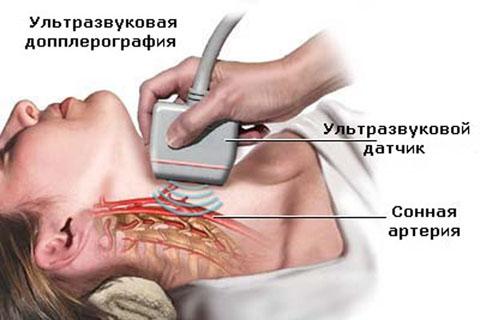 Допплерография головы и шеи
