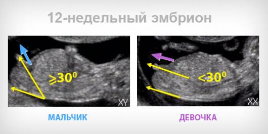 Беременность 12 недель УЗИ пол ребенка фото