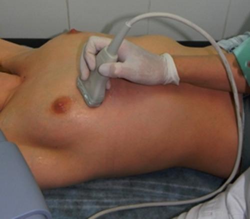 УЗИ молочной железы как делают