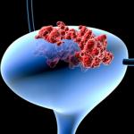 УЗИ мочевого пузыря у женщин