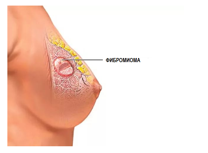 Фибромиома на узи молочной железы