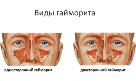 УЗИ гайморовых пазух носа