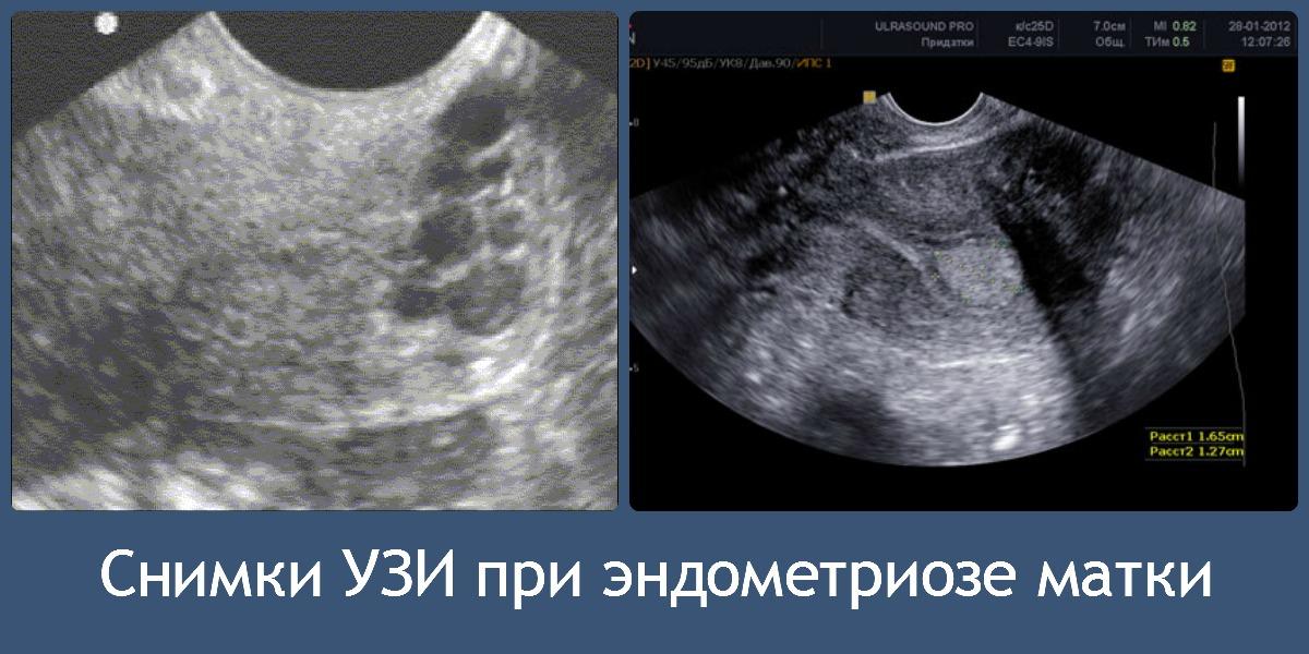 Эндометриоз матки на снимке УЗИ