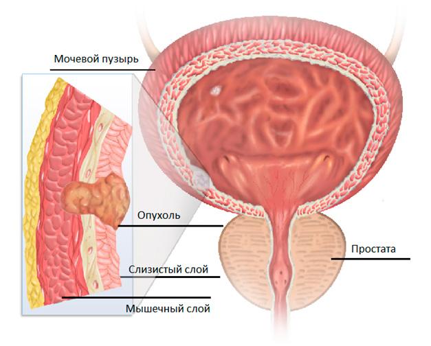 рак на УЗИ мочевого пузыря у мужчин