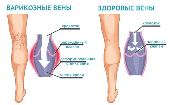 Допплерография нижних конечностей строение вены