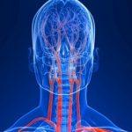 Допплерография сосудов головы и шеи