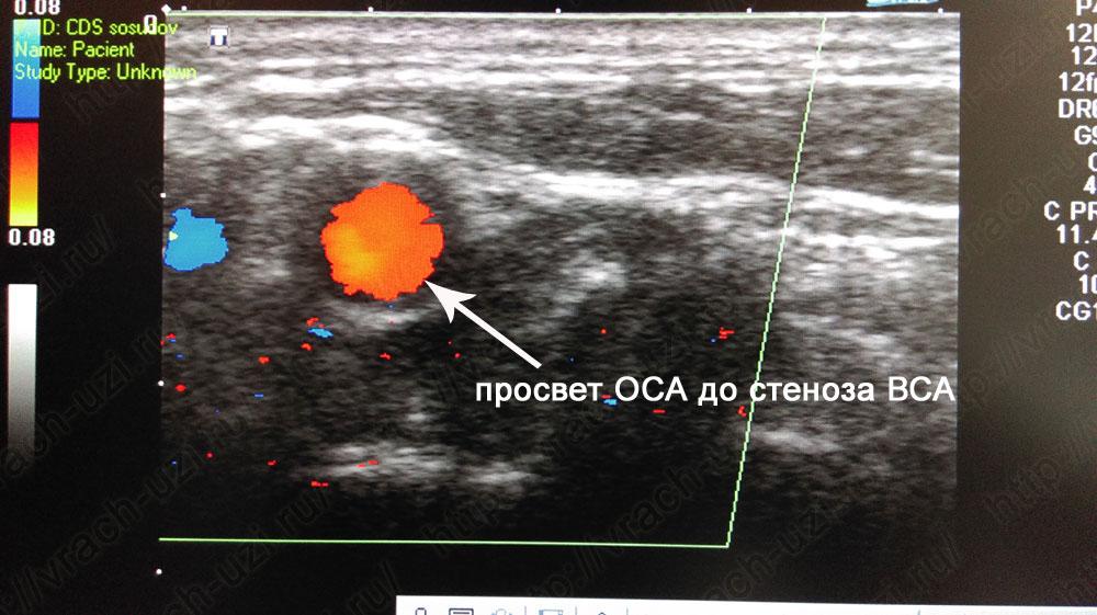 Стеноз внутренней сонной артерии на снимке УЗДГ