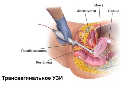 Трансвагинальное УЗИ как проводится
