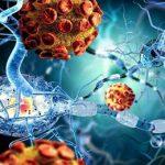 УЗИ диагностика периферических нервов