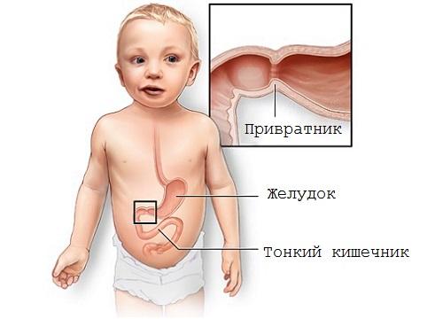 пилоростеноз у детей на узи