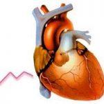 ЭхоКГ сердца с допплерографией