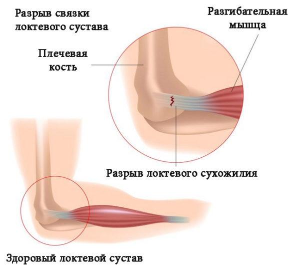 узи локтевого сустава что показывает
